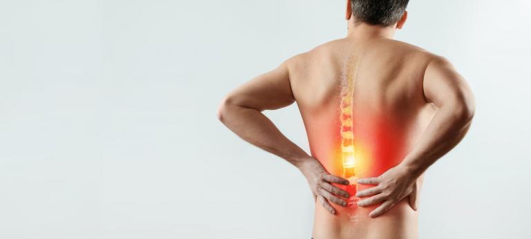 sciatica cause come eliminare mal di schiena nadia forte schiena forte