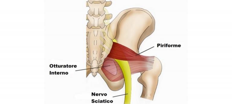 Test sindrome piriforme valutazione esercizi piriforme mal di schiena schiena forte Nadia Forte