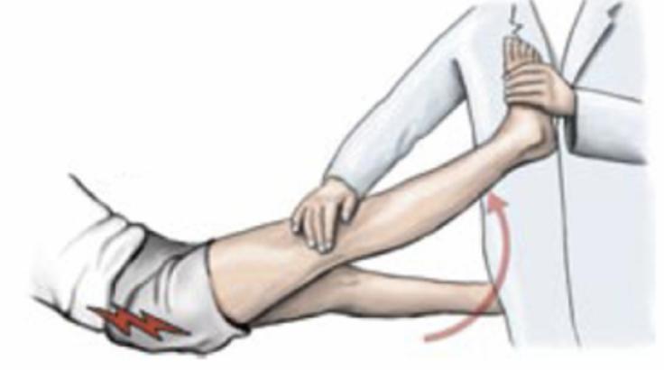 test lasegue lombosciatalgia ernia del disco mal di schiena nadia forte schiena forte