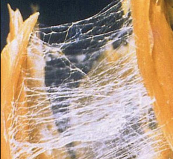 tensioni viscerali aderenze intestinali addominali mal di schiena nadia forte schiena forte