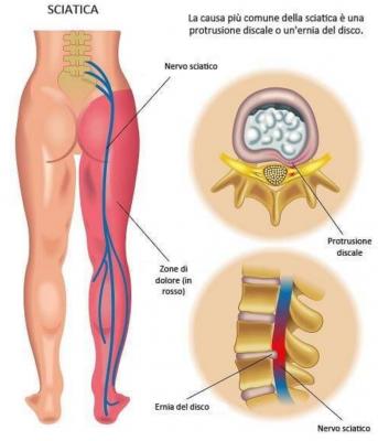 ernia del disco sciatalgia mal di schiena nadia forte schiena forte