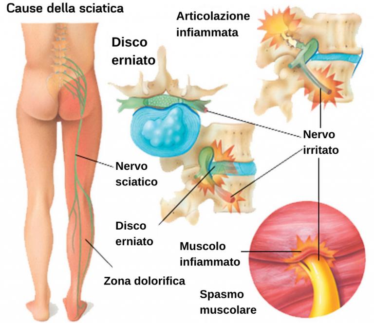 schiena forte mal di schiena lombosciatalgia acuta ernia L5 S1 causa sciatica
