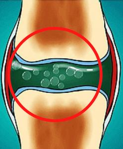 scrocchiare schiena causa suono crack mal di schiena nadia forte schiena forte