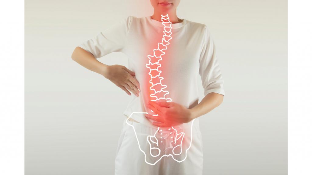 effetti collaterali intervento ernia squilibrio posturale mal di schiena nadia forte schiena forte