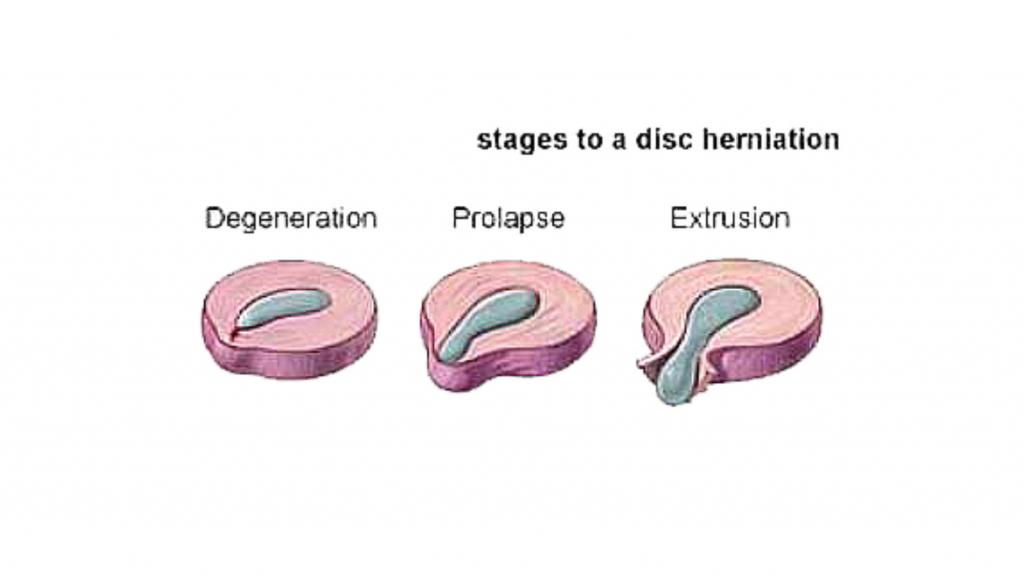 ernia espulsa operazione mal di schiena nadia forte schiena forte